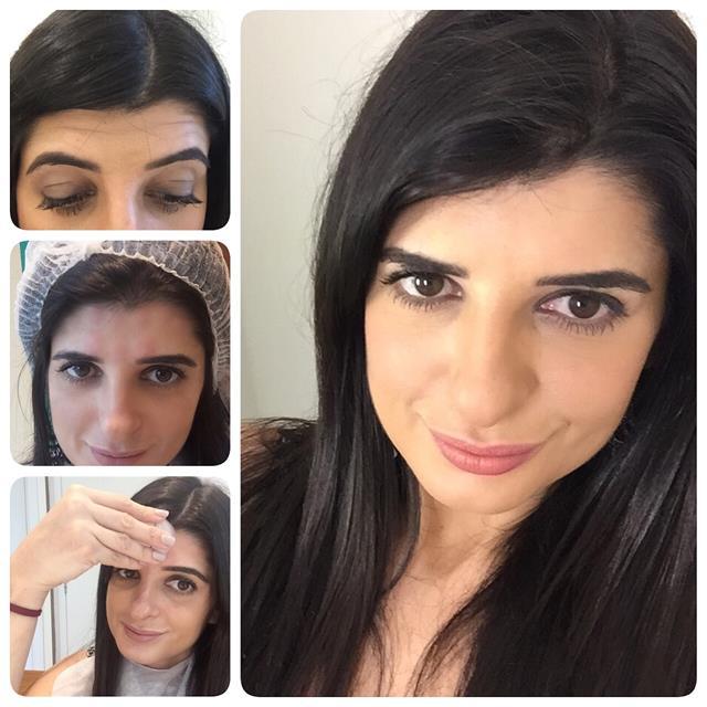pele perfeita primeiro botox